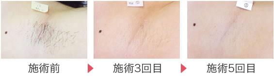医療レーザー脱毛後の経過