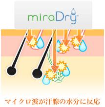 ミラドライのマイクロ波が汗腺の水分に反応